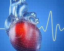 Heart Blocks Treatment