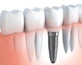 Dental Adhesives And Sealants Market