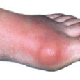 Gout Disease Treatment Market