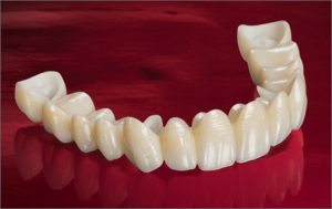 Dental Crown and Bridges Market