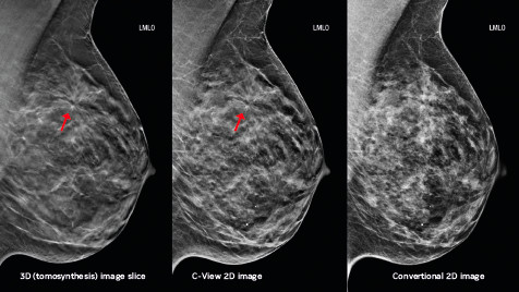 Tomosynthesis: A Boon to Breast Cancer Patients