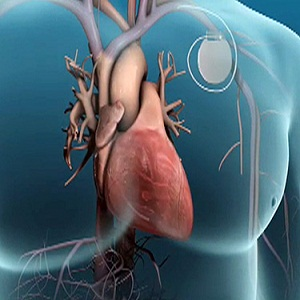 Cardiomyopathy Devices Market