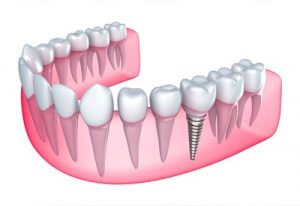 Single-tooth Implants and Dental Bridges Market