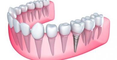 Single-tooth Implants and Dental Bridges Market