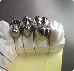 Dental Indirect Restorative Materials Market