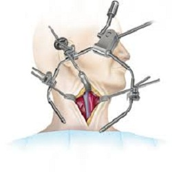 Surgical Retractors Market