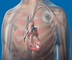Transcatheter Cardiac Pacemaker Market