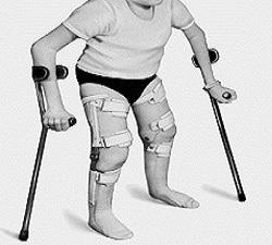Osteogenesis Imperfecta Treatment Market